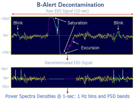 B-Alert EEG Decontamination